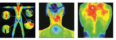 Thermography - Digital Infrared Thermal Imaging (DITI) services